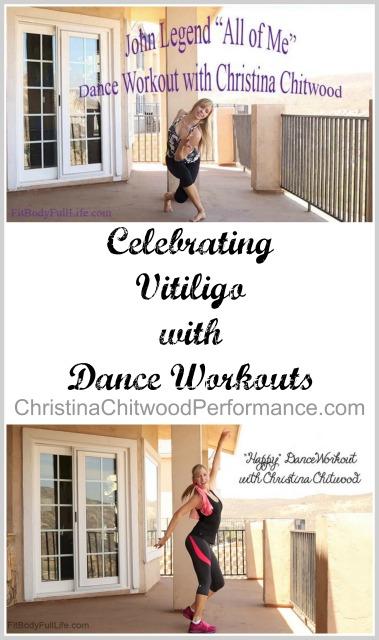 Celebrating Vitiligo with Dance Workouts