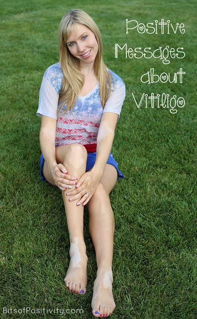 Positive Messages about Vitiligo